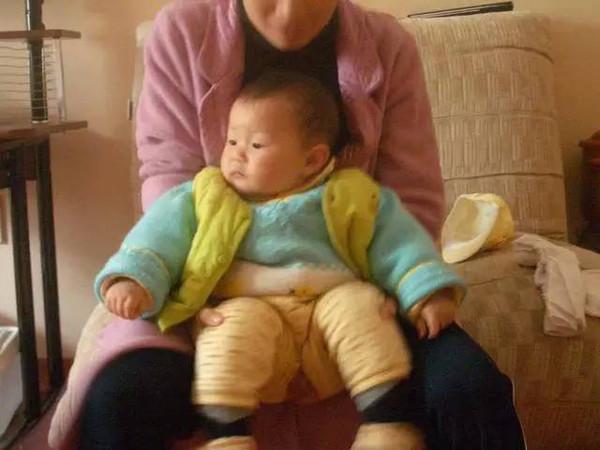 一岁宝宝脱肛